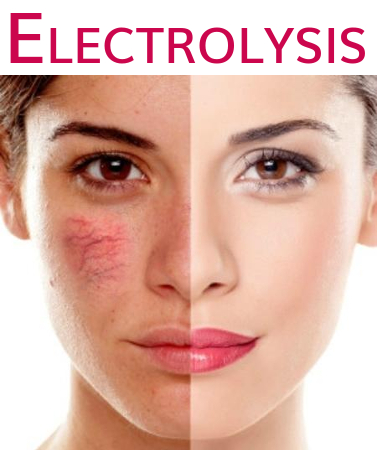 Electrolysis treatment image